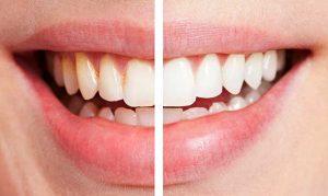 отбеливание зубов zoom 1